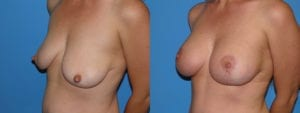 Patient 3c Breast Lift Before and After