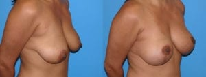 Patient 4b Breast Lift Before and After