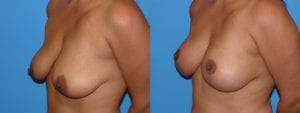 Patient 4c Breast Lift Before and After
