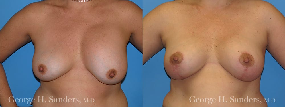 Patient 5a Breast Lift Before and After