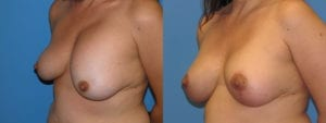 Patient 5c Breast Lift Before and After