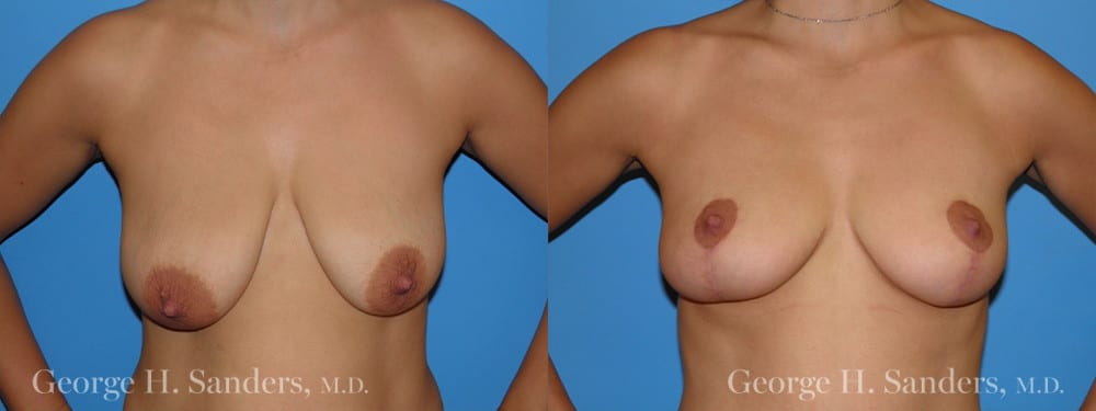 Patient 6a Breast Lift Before and After