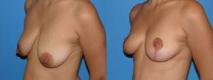 Patient 6b Breast Lift Before and After