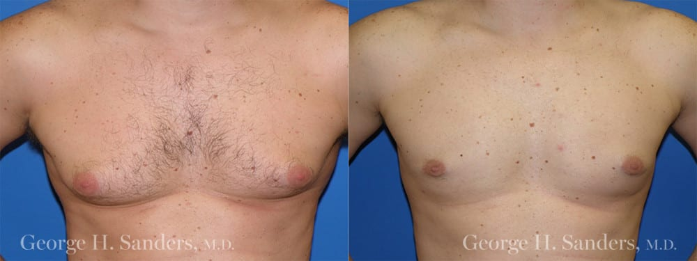 Patient 1a Gynecomastia Before and After