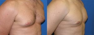 Patient 1c Gynecomastia Before and After