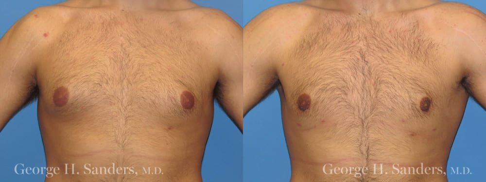Patient 11a Gynecomastia Before and After