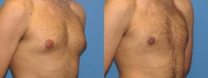 Patient 11b Gynecomastia Before and After
