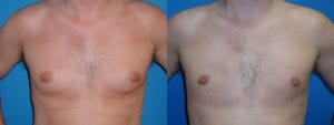 Patient 4a Gynecomastia Before and After