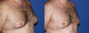 Patient 5b Gynecomastia Before and After
