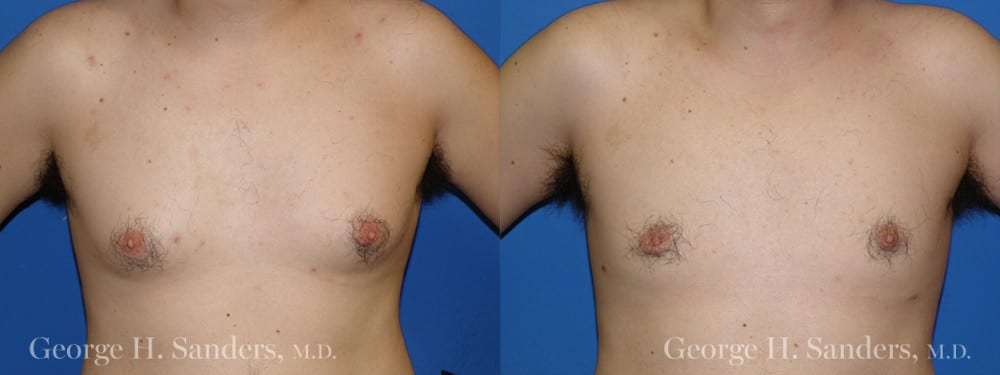 Patient 7a Gynecomastia Before and After