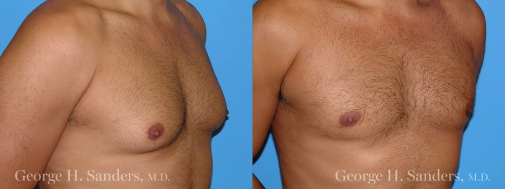 Patient 9a Gynecomastia Before and After