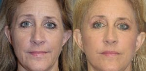 Patient 1a Laserbrasion Before and After