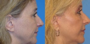 Patient 1b Laserbrasion Before and After