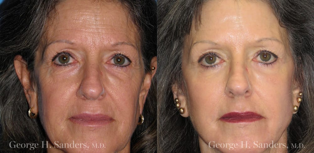 Patient 10a Laserbrasion Before and After