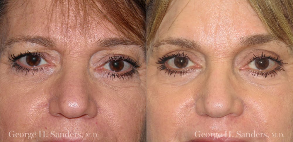 Patient 3a Laserbrasion Before and After