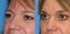 Patient 3b Laserbrasion Before and After