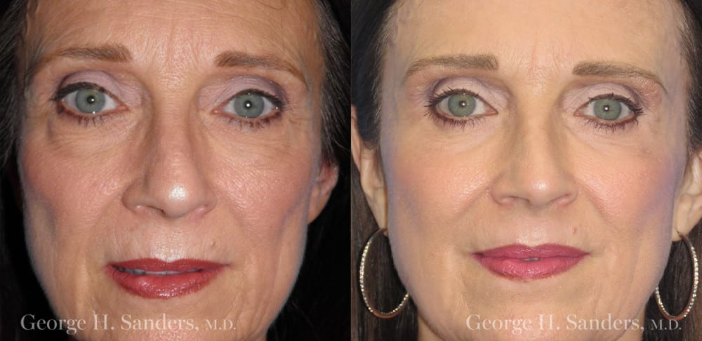Patient 4a Laserbrasion Before and After