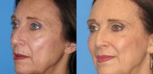 Patient 4b Laserbrasion Before and After
