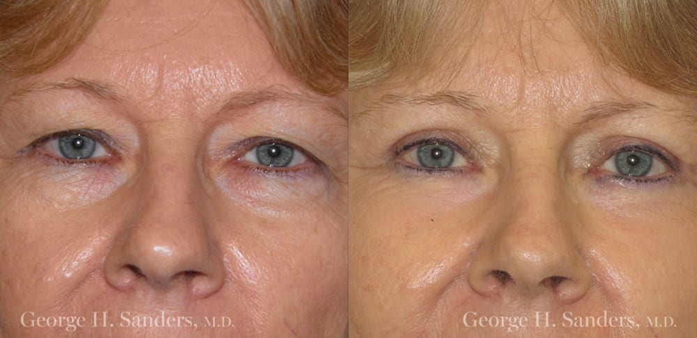 Patient 5a Laserbrasion Before and After