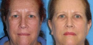 Patient 6a Laserbrasion Before and After