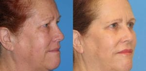 Patient 6b Laserbrasion Before and After