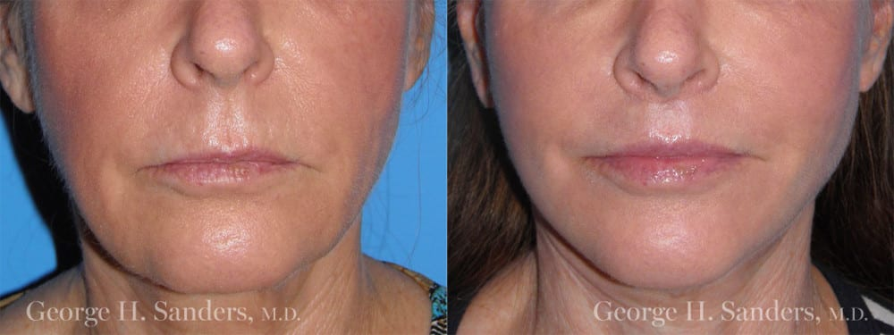 Patient 1a Lip Lift Before and After