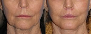 Patient 2a Lip Lift Before and After