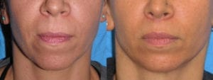 Patient 3a Lip Lift Before and After