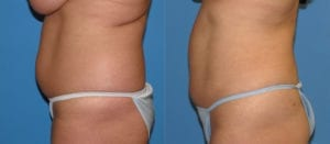 Patient 1b Liposuction Before and After