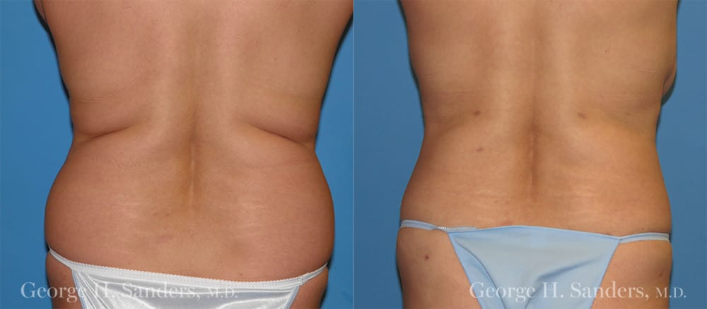 Patient 1c Liposuction Before and After