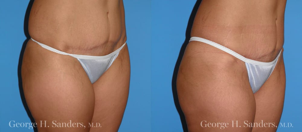 Patient 2b Liposuction Before and After