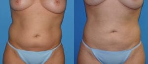 Patient 3a Liposuction Before and After