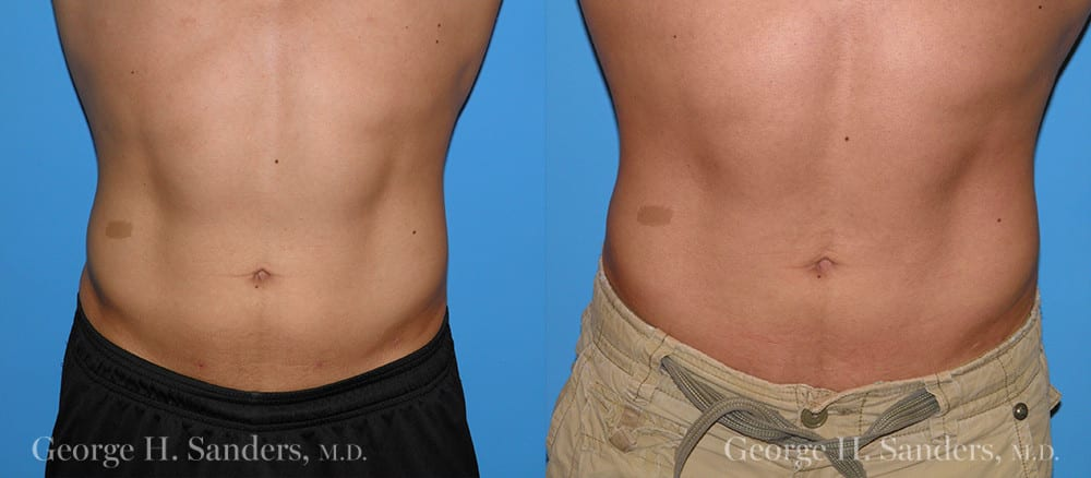 Patient 1a Male Liposuction Before and After
