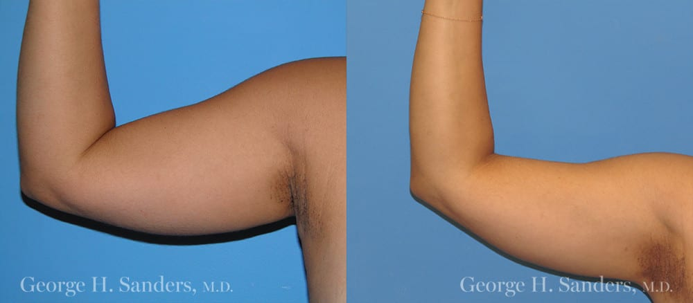 Patient 4a Liposuction Before and After