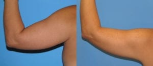Patient 4b Liposuction Before and After