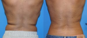 Patient 5a Liposuction Before and After