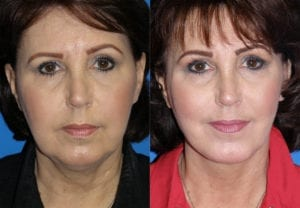 Patient 1b MACS Lift Before and After