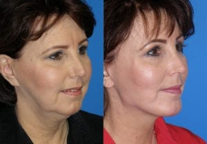 Patient 1a MACS Lift Before and After