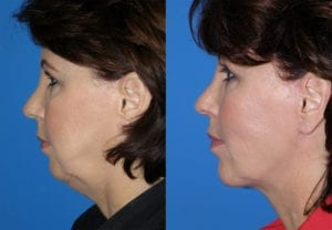 Patient 1c MACS Lift Before and After