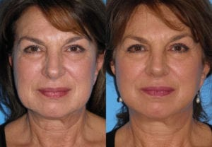 Patient 2b MACS Lift Before and After