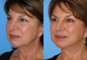 Patient 2a MACS Lift Before and After