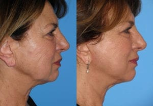 Patient 2c MACS Lift Before and After
