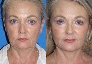 Patient 3a MACS Lift Before and After