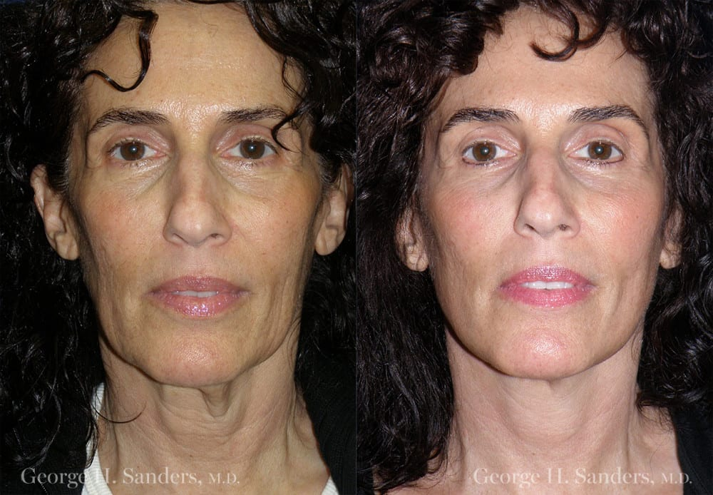 Patient 4a MACS Lift Before and After