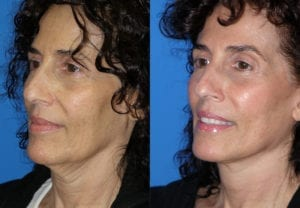 Patient 4c MACS Lift Before and After