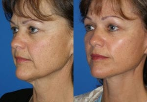 Patient 5b MACS Lift Before and After