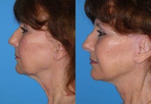 Patient 6c MACS Lift Before and After