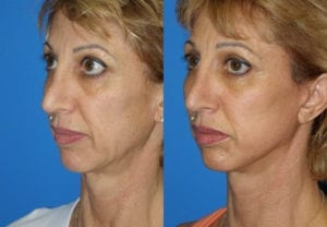 Patient 7b MACS Lift Before and After