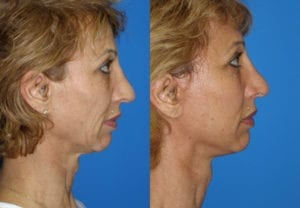 Patient 7c MACS Lift Before and After