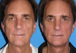 Patient 1a Male Facelift Before and After